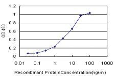Anti-PSPH Mouse Monoclonal Antibody