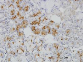 Anti-RBP4 Mouse Monoclonal Antibody