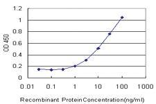 Anti-ROBO2 Mouse Monoclonal Antibody