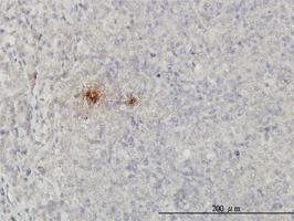Anti-SCGB1A1 Mouse Monoclonal Antibody