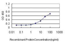 Anti-SERPINE1 Mouse Monoclonal Antibody