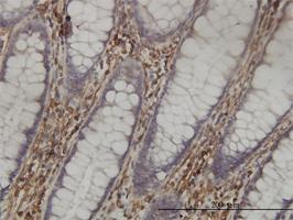 Anti-SHMT1 Mouse Monoclonal Antibody