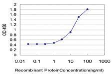 Anti-STMN2 Mouse Monoclonal Antibody