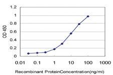 Anti-SYNJ1 Mouse Monoclonal Antibody