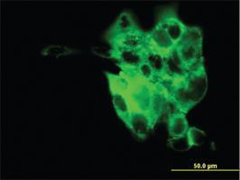 Anti-SYT4 Mouse Monoclonal Antibody