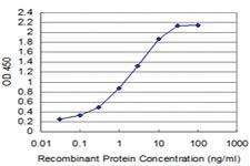 Anti-TCL1A Mouse Monoclonal Antibody