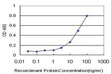 Anti-TIMP1 Mouse Monoclonal Antibody