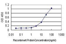Anti-TP53BP1 Mouse Monoclonal Antibody