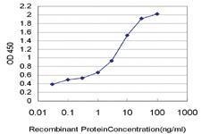 Anti-HELZ Mouse Monoclonal Antibody