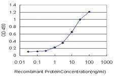Anti-HGD Mouse Monoclonal Antibody