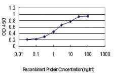 Anti-IQGAP2 Mouse Monoclonal Antibody