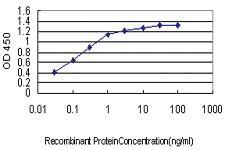 Anti-JPH1 Mouse Monoclonal Antibody