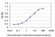 Anti-KCNJ10 Mouse Monoclonal Antibody