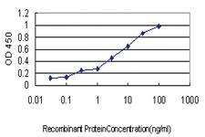 Anti-KRIT1 Mouse Monoclonal Antibody