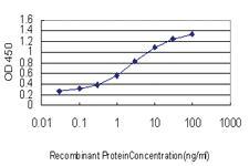 Anti-LDLR Mouse Monoclonal Antibody