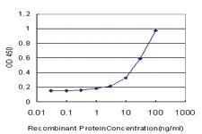 Anti-VDR Mouse Monoclonal Antibody