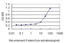 Anti-ZNF394 Mouse Monoclonal Antibody