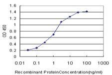 Anti-MAGI2 Mouse Monoclonal Antibody