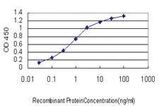 Anti-MCPH1 Mouse Monoclonal Antibody