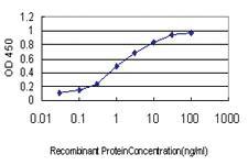 Anti-MS4A1 Mouse Monoclonal Antibody