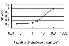 Anti-NDRG1 Mouse Monoclonal Antibody