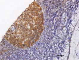Anti-NOLC1 Mouse Monoclonal Antibody