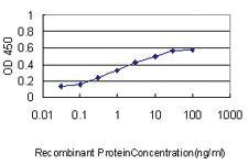 Anti-NPC1 Mouse Monoclonal Antibody