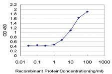 Anti-NR2F2 Mouse Monoclonal Antibody