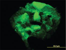 Anti-PAPSS2 Mouse Monoclonal Antibody