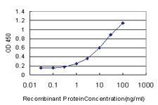 Anti-PCDH20 Mouse Monoclonal Antibody