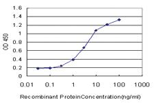 Anti-PCYT1A Mouse Monoclonal Antibody