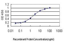 Anti-PFN2 Mouse Monoclonal Antibody