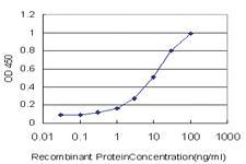 Anti-PHF21A Mouse Monoclonal Antibody