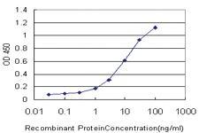 Anti-PNLIPRP2 Mouse Monoclonal Antibody