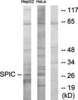 Western blot analysis of extracts from HepG2 cells and HeLa cells using SPIC antibody